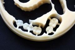 Implantatarbeit  mit Bisshebung auf Zimmer-Implantaten – Bild 3