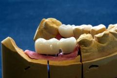 Implantatarbeit  mit Bisshebung auf Zimmer-Implantaten – Bild 9