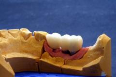 Implantatarbeit  mit Bisshebung auf Zimmer-Implantaten – Bild 10