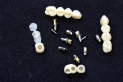 Implantatarbeit  mit Bisshebung auf Zimmer-Implantaten – Bild 11
