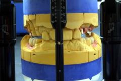Implantatarbeit  mit Bisshebung auf Zimmer-Implantaten – Bild 13