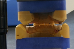 Implantatarbeit  mit Bisshebung auf Zimmer-Implantaten – Bild 14