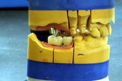 Implantatarbeit  mit Bisshebung auf Zimmer-Implantaten – Bild 15