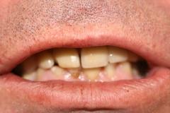 Dentallabor Feldmann - Implantatarbeit - Oberkiefer und Unterkiefer - Bild 1