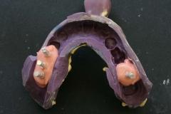 Dentallabor Feldmann - Implantatarbeit - Oberkiefer und Unterkiefer - Bild 4