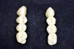 Dentallabor Feldmann - Implantatarbeit - Oberkiefer und Unterkiefer - Bild 9