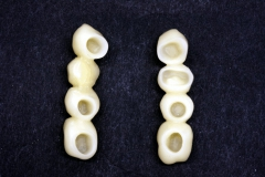 Dentallabor Feldmann - Implantatarbeit - Oberkiefer und Unterkiefer - Bild 10