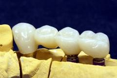 Dentallabor Feldmann - Implantatarbeit - Oberkiefer und Unterkiefer - Bild 11