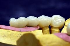 Dentallabor Feldmann - Implantatarbeit - Oberkiefer und Unterkiefer - Bild 12