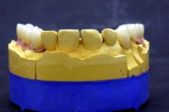 Dentallabor Feldmann - Implantatarbeit - Oberkiefer und Unterkiefer - Bild 13