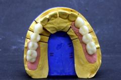 Dentallabor Feldmann - Implantatarbeit - Oberkiefer und Unterkiefer - Bild 14