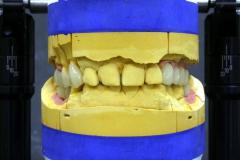 Dentallabor Feldmann - Implantatarbeit - Oberkiefer und Unterkiefer - Bild 15