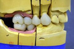 Dentallabor Feldmann - Implantatarbeit - Oberkiefer und Unterkiefer - Bild 16