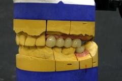 Dentallabor Feldmann - Implantatarbeit - Oberkiefer und Unterkiefer - Bild 17
