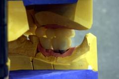 Dentallabor Feldmann - Implantatarbeit - Oberkiefer und Unterkiefer - Bild 18