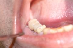 Dentallabor Feldmann - Implantatarbeit - Oberkiefer und Unterkiefer - Bild 23