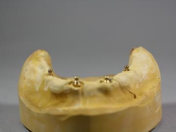 Dentallabor Feldmann - Implantate für besseren Prothesenhalt - Bild 3