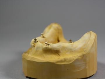 Dentallabor Feldmann - Implantate für besseren Prothesenhalt - Bild 4