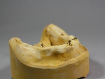 Dentallabor Feldmann - Implantate für besseren Prothesenhalt - Bild 5