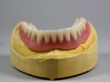 Dentallabor Feldmann - Implantate für besseren Prothesenhalt - Bild 7