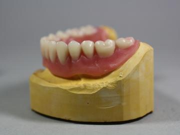 Dentallabor Feldmann - Implantate für besseren Prothesenhalt - Bild 8