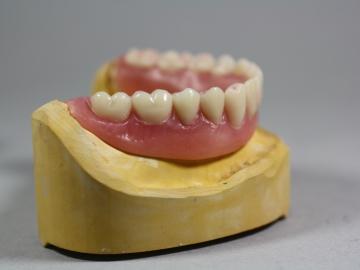 Dentallabor Feldmann - Implantate für besseren Prothesenhalt - Bild 9