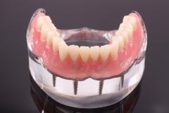 Dentallabor Feldmann - Implantate für besseren Prothesenhalt - Bild 1