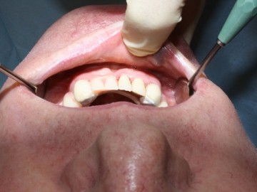 Dentallabor Feldmann - Zahnersatz für Allergiker - Bild 04