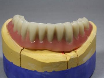 Dentallabor Feldmann - Zahnersatz für Allergiker - Bild 05