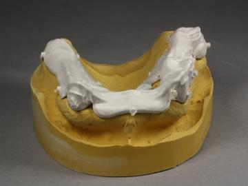 Dentallabor Feldmann - Zahnersatz für Allergiker - Bild 18