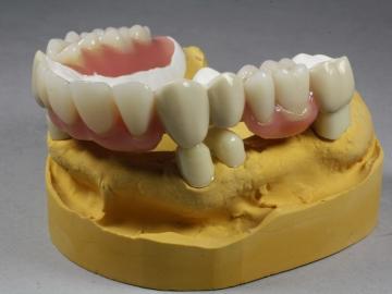 Dentallabor Feldmann - Zahnersatz für Allergiker - Bild 22
