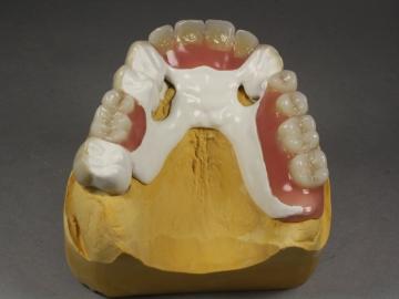 Dentallabor Feldmann - Zahnersatz für Allergiker - Bild 24